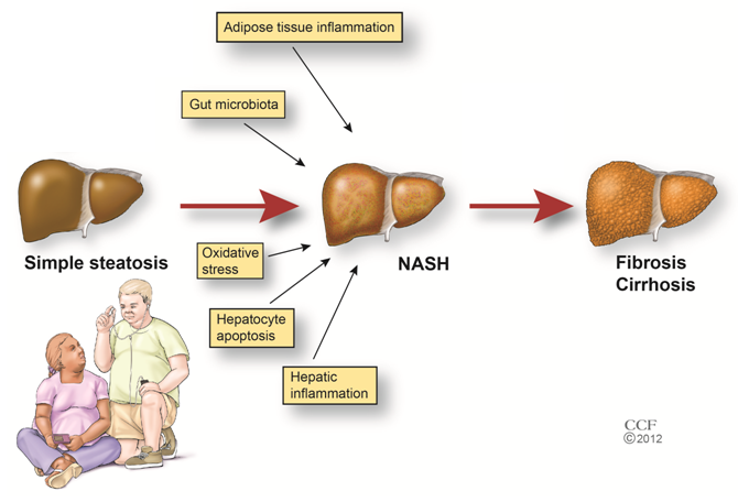 disease of the liver zone 1
